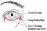eye-conditions