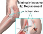 minimally-invasive-hip